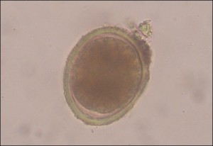 Toxocara-cati-roundworm-egg_thumb